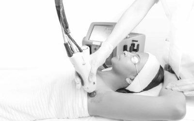 Épilation Laser : est-ce douloureux ?
